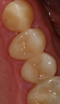 Herstelde tanden na de behandeling
