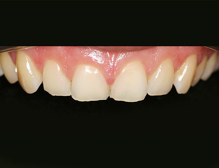 Versleten-en-pijnlijke-tanden-02.jpg