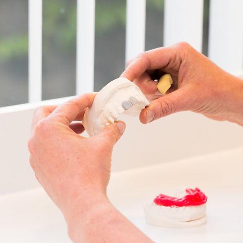 Estetische behandelingen zilveren tanden