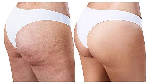 ENDERMOLOGIE-Cellulite-W1TanningandBeaut
