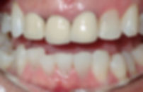 anterior bridge before.jpg
