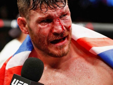 Oh Snap! Michael Bisping to challenge Luke Rockhold for the Title