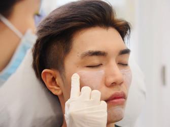 Face Shaping at Halley Medical Asthetics