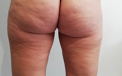 Cellulite reduction.png