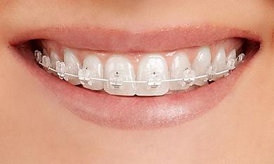 Teeth-EmpowerClear.jpg