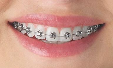 Teeth-EmpowerMetal.jpg