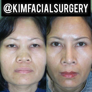 kim facial rhinoplasty 20191112.jpg