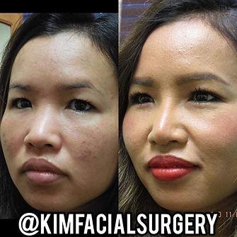Kim Facial Rhinoplasty 2020-05-08_10-13-