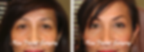 browliftbeforeafter.png