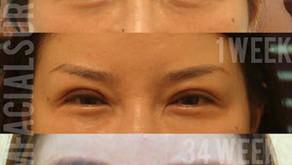 Asian Eye Lid Surgery