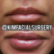 kim facial lip augmentation 20191213.png