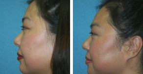 Remove Excess Fat with Facial and Neck Liposuction