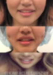 dimples2019-03-01-2.jpg