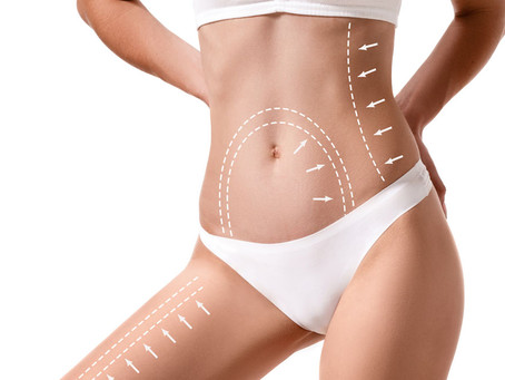 Why Liposuction?