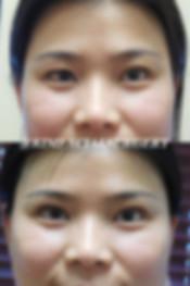 kimfacial-bleph-07-3-2019.jpg