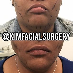 kim facial dimples and facial lipo 20191