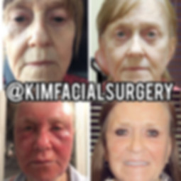 kim facial facelift 08-20-19.jpg