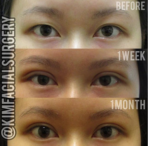 Kim Facial Bleph 2020-05-08_10-17-32.jpg