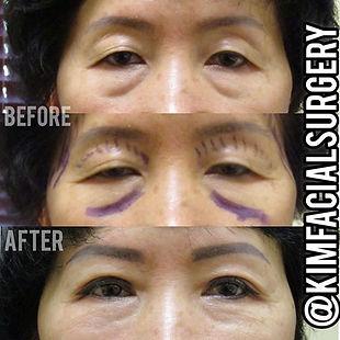 kim facial autologous and bleph.jpg