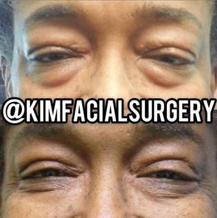 Kim Facial Bleph 2020-12-23.jpg