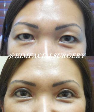 kim facial asian bleph2019-08-20_14-58-1