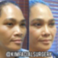 kimfacial-rhinoplasty-08-01-2019.jpg