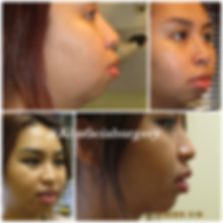 chin implant gallery1.PNG