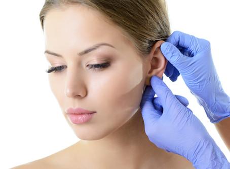 Ear Shaping - Otoplasty