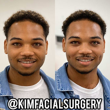 Kim Facial Dimples 2020-05-08_10-08-02.j