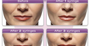Juvederm Provides the Wrinkle Rejuvenation You Need