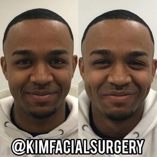 Kim Facial Dimples 2020-05-08_10-22-27.j