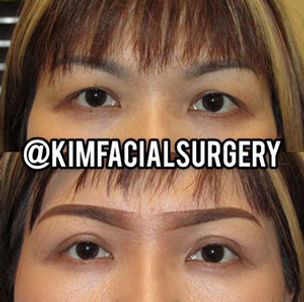 Kim Facial Bleph 2020-05-08_10-01-45.jpg