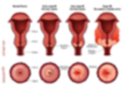 Cervical Cancer Illustration Original Tr