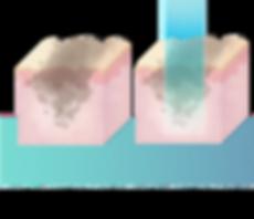 iAesthetics Dark Underarm Whitening Programme Trial Treatment Process Part 1