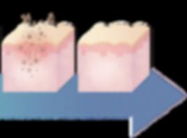 iAesthetics Dark Underarm Whitening Programme Trial Treatment Process Part 2