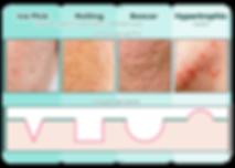 iAesthetics Different Types of Acne Scar