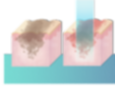 Step-by-step illustration showing the pigmentation removal treatment process - step 1 and 2. iAesthetics Clinic Singapore