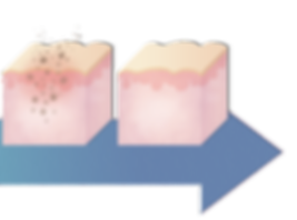 Step-by-step illustration showing the pigmentation removal treatment process - steps 3 and 4. iAesthetics Clinic Singapore