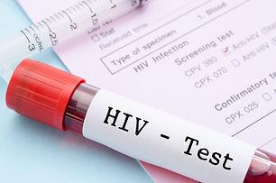 HIV blood test.jpg