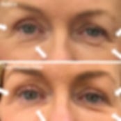 Plexr upper blepharoplasty PLEXR PLUS.  Non surgical treatment for droopy eyelids.  Call the clinic on 38998808 for a consultation.