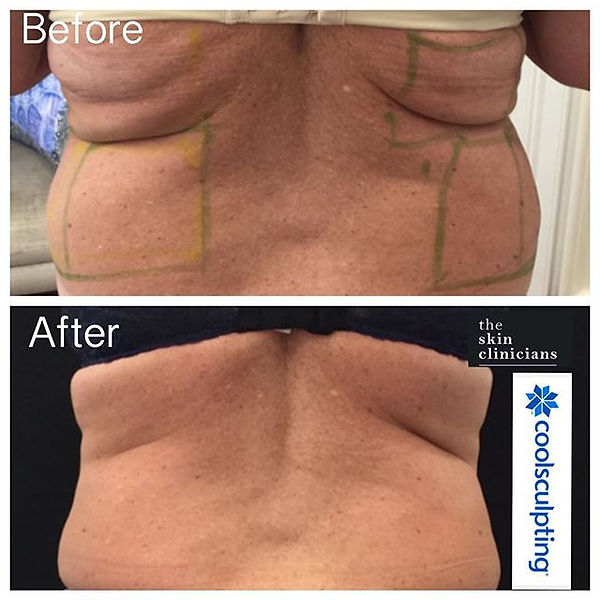 Coolsculpting Flanks and Bra Roll The Skin Clinicians