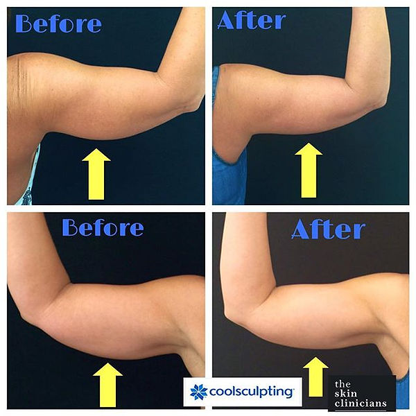 Coolsculpting Arms The Skin Clinicians