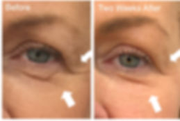 PLEXR PLUS.  Non surgical treatment for droopy eyelids.  Call the clinic on 38998808 for a consultation.