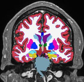 CorticoMetrics NIH STTR Phase I Dementia Forecast