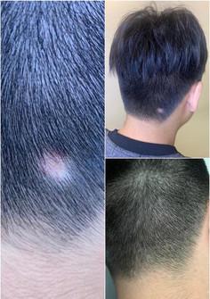 Bionature - 60days Anti-Hair Loss Scalp Treatment