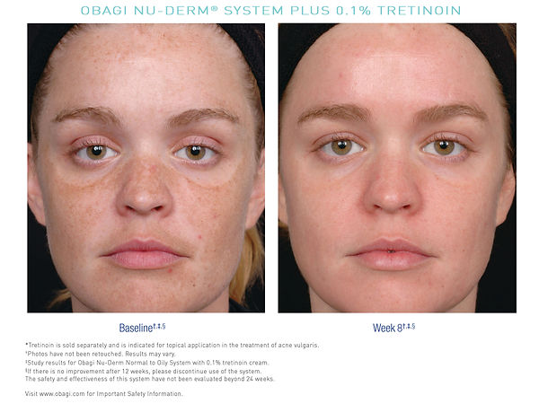 US_Nu_Derm_Tretinoin_Before_After_4.jpg