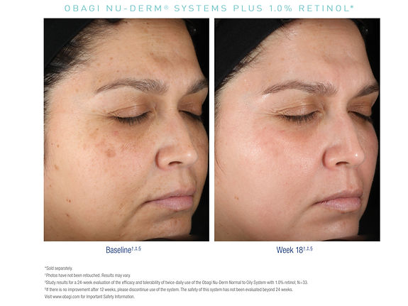 US_Nu_Derm_Retinol_Before_After_1.jpg