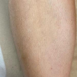 Before leg wax