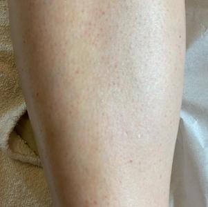 After leg wax