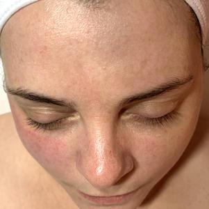 Before chemial peel